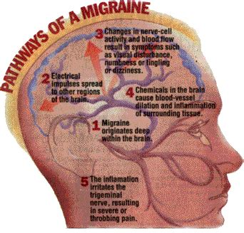 Peek Me Naturals Anti Migraine the 3 biological causes of migraines vascular