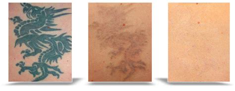 bay area tattoo removal the bay area laser removal center deborah