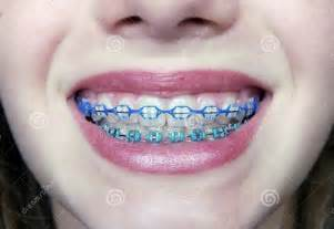 colorful braces pictures of braces before and after teeth braces ideas