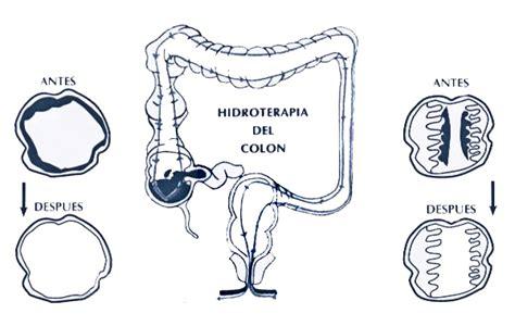 hidroterapia de colon en casa hidroterapia de colon moderna linea natural
