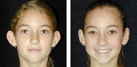 Chirurgie Oreille Dã Collã E Otoplastica Foto Prima E Dopo A Chirurgia Delle Orecchie