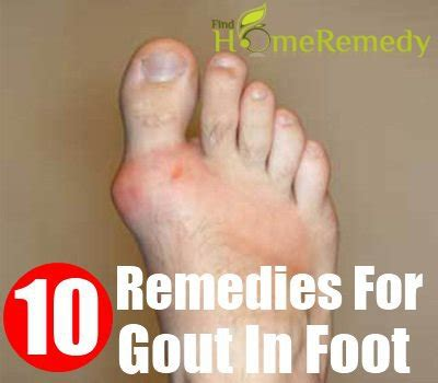10 home remedies for gout in foot treatments