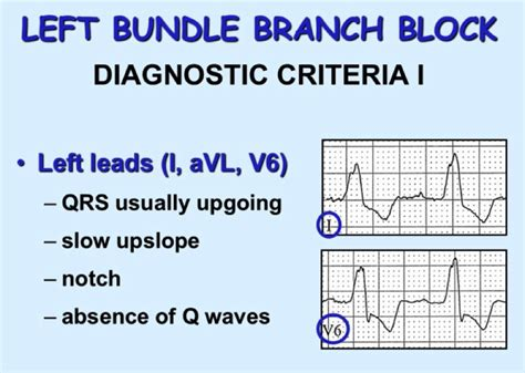 lbbb pattern rbbb criteria related keywords suggestions rbbb