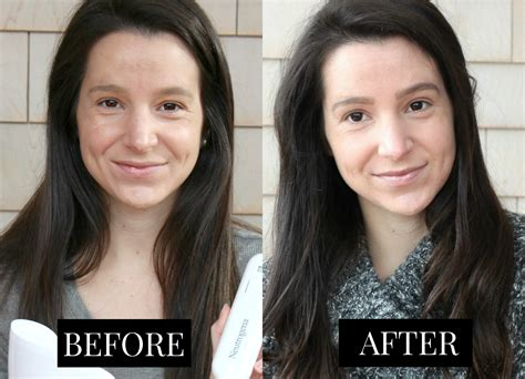 how well does the neutrogena light mask work the benefits of light therapy for acne diary of a debutante