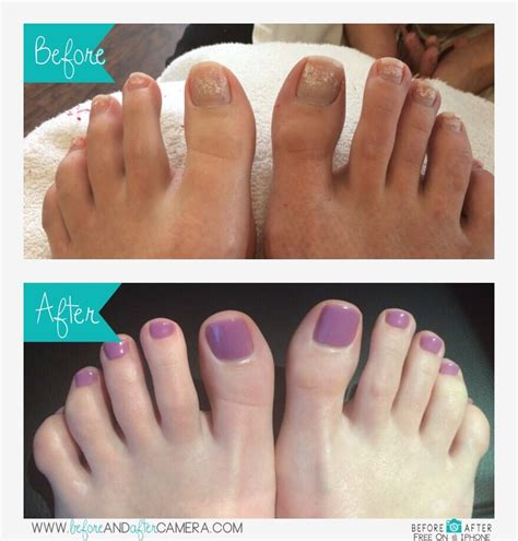 Detox Pedicure Near Me by Gel Pedicure Before After Yelp