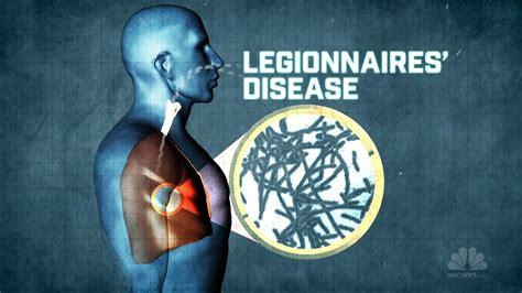 pontiac fever symptoms legionnaires disease symptoms and causes