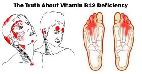 Vitamin B12 Also Search For Give Me 10 Minutes I Ll Give You The About Vitamin B12 Deficiency