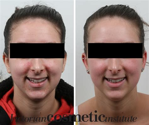 light rx before and after successful acne treatments in melbourne