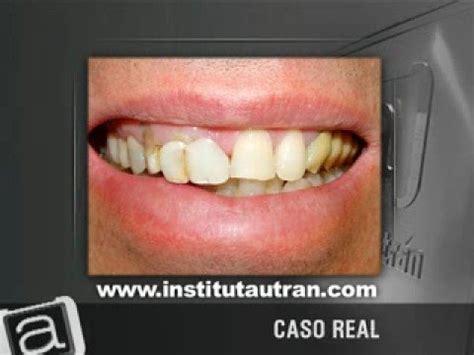 fundas zirconio problemas est 233 tica dental coronas antiguas problema y soluci 243 n