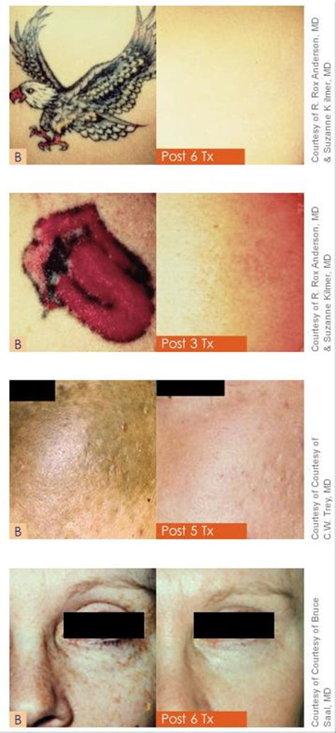 revlite tattoo removal removal on island ny laser