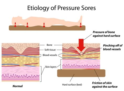 Bed Sore Stages by Pressure Ulcers Bed Sores Health Media