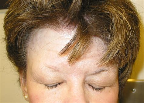 haircuts for those with alopecia hairstyles for women with frontal fibrosing alopecia
