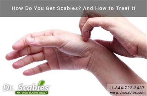 how do you get scabies and how to treat it best scabies