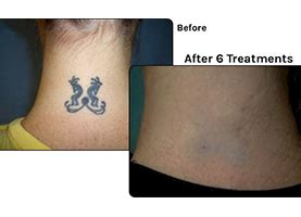 tucson tattoo removal lasting impressions permanant makeup removal