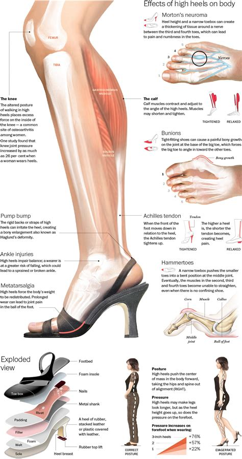 tips on wearing high heels comfortably advanced healthcare chiropractor in toronto on canada