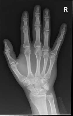 What is Gamekeeper's Thumb? - JUNIORBONES