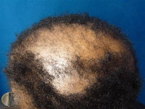female pattern hair loss dermnet female hair loss treatment androgenetic alopecia causes