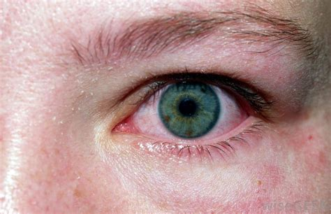 eye allergies headache as related to allergic conjunctivitis pictures