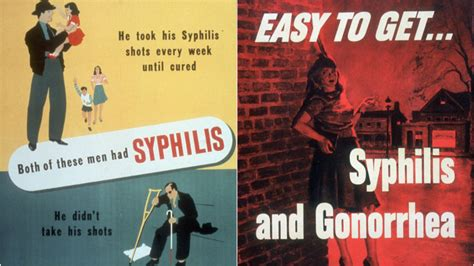 syphilis warning posters against war syphilis what is it symptoms treatment and how it is