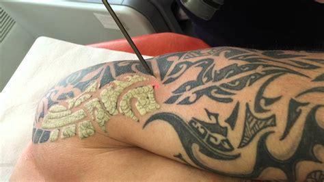 enlever tattoo laser quebec enlever un tatouage au laser youtube