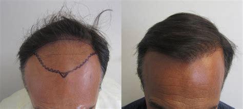 hair cloning update 2014 hair cloning 2014 hair cloning 2014 hair cloning 2014