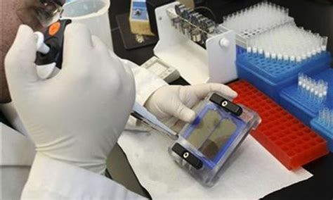 dna fingerprinting lab report sle dna lab in sindh opening today pakistan