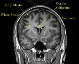 Bentleys Mri Gray And White Brain Matter Car Tuning