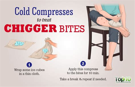 10 steps to get rid of chigger bites howtoxp com how to treat chigger bites top 10 home remedies