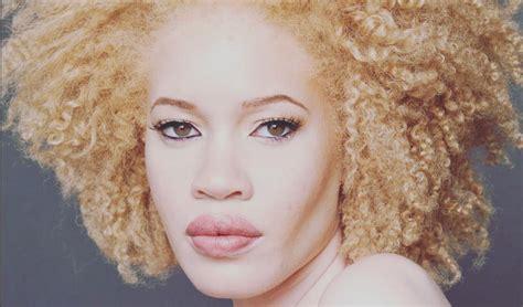 albino haircuts albino models black women hairstyles hairstyles 2017