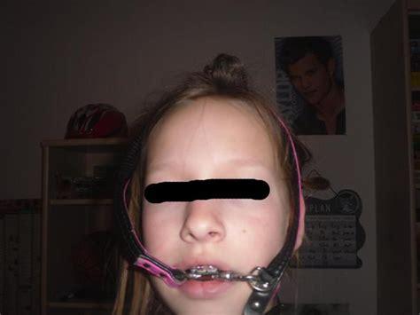 Gestell Zahnspange by Schmerzen Wegen Headgear Was Tun Zahnspange Zahn