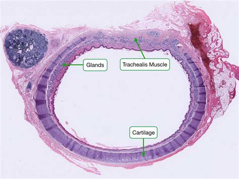 cross section of trachea respiratory system reading php lab
