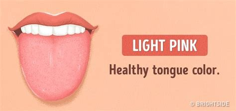 healthy tongue color 13 things your tongue is trying to tell you about your health