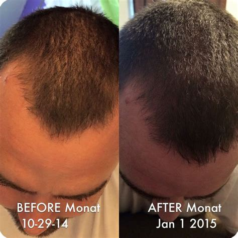 before and after thinning mens haircut 17 best images about monet global market partner paulina