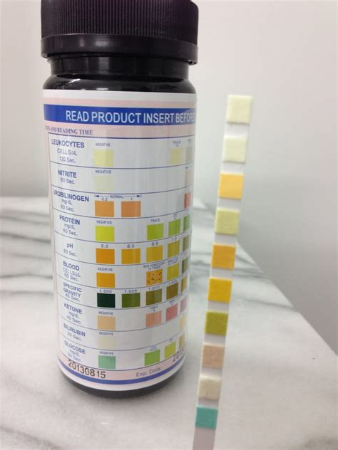 t protein in blood test urine dipstick test for blood protein sugar yelp