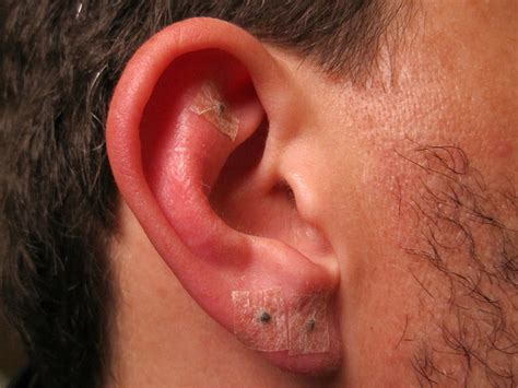 ear piercing infection infected ear piercing pierced
