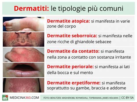 dermatite da alimenti dermatite cause sintomi cure e tipi atopica