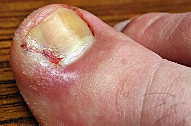 toenail bleeding can toenail fungus cause bleeding or nerve damage