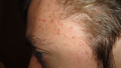 Rash On Forehead After Shower by Rash On Temple Area Dermatology Patient