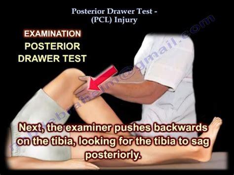 Posterior Drawer Test by Posterior Drawer Test Pcl Injury Everything You Need To