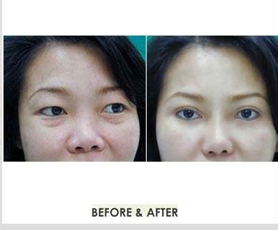 before after yanhee hospital eyelids surgery plastic surgery in thailand
