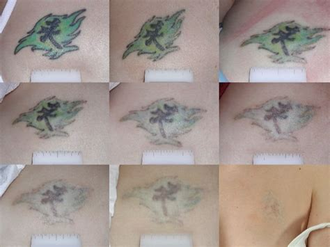 saltwater tattoo removal mei 2017 removal remedies