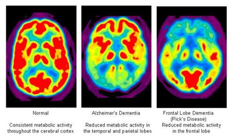 Color Affects Mood pet ct neurology 187 northern california pet imaging center