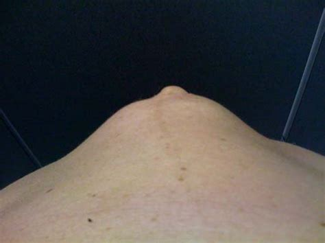 norfolk womens health physio abdominal pain  muscle
