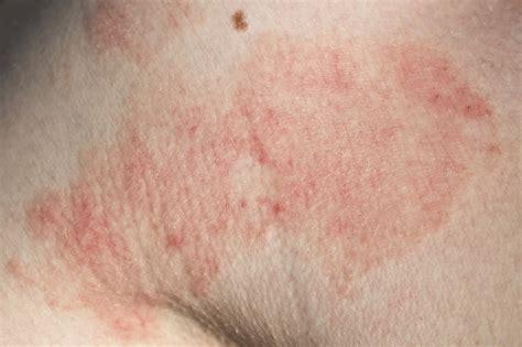 allergic dermatitis what is allergic contact dermatitis