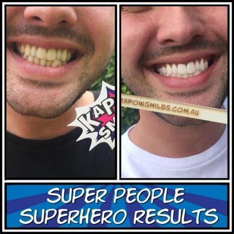 Teeth Whitening Kits   KAPOW! Smiles Voted Australia's Best
