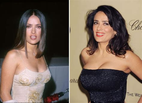 celebrity breast implants before amp after celebrity