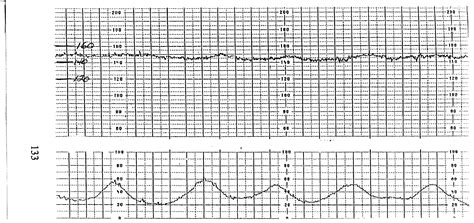 pattern heart rate sinusoidal fetal heart rate pattern using design