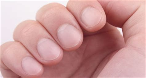 Swollen Nail Bed How To Treat An Ingrown Fingernail
