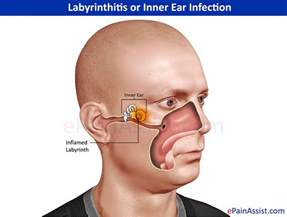 labyrinthitis or inner ear infection types symptoms