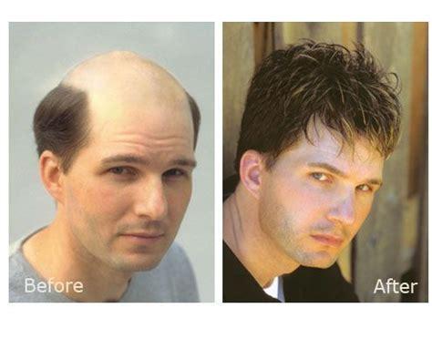 fut hong kong hair transplant 17 best images about hair replacement dubai on pinterest